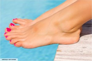 Best Home Remedies for Your Cracked Heels