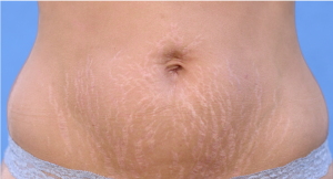 Best Home Treatment for Stretch Marks